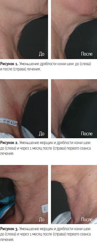 Результаты процедуры лазером Affirm
