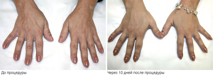 Результаты процедуры объемного моделирования кистей рук