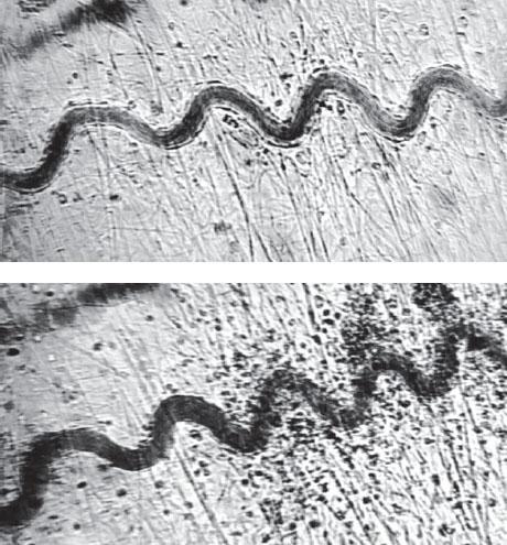 Агрегация эритроцитов в микрососуде